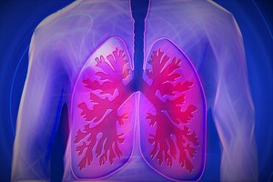 What's New in Lung Cancer